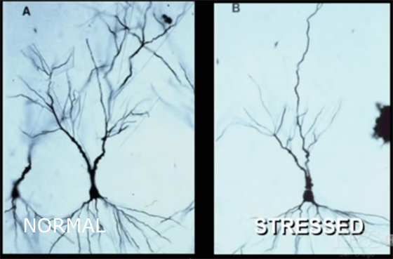 Normal vs stressed brain cells of lab rats